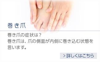 巻き爪 巻き爪の症状は?巻き爪は、爪の側面が内側に巻き込む状態を言います。 詳しくはこちら